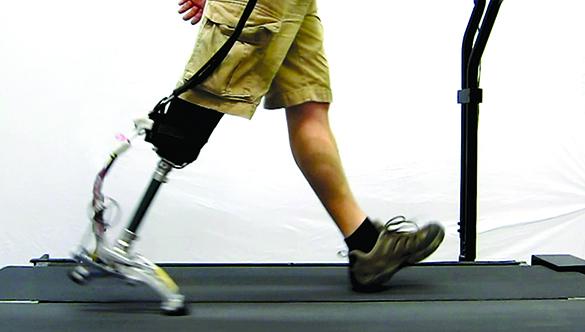 Caputo prosthesis